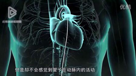 你了解心脏支架手术吗?